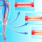 arterieBeine