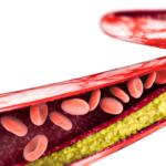 arterieblockiert